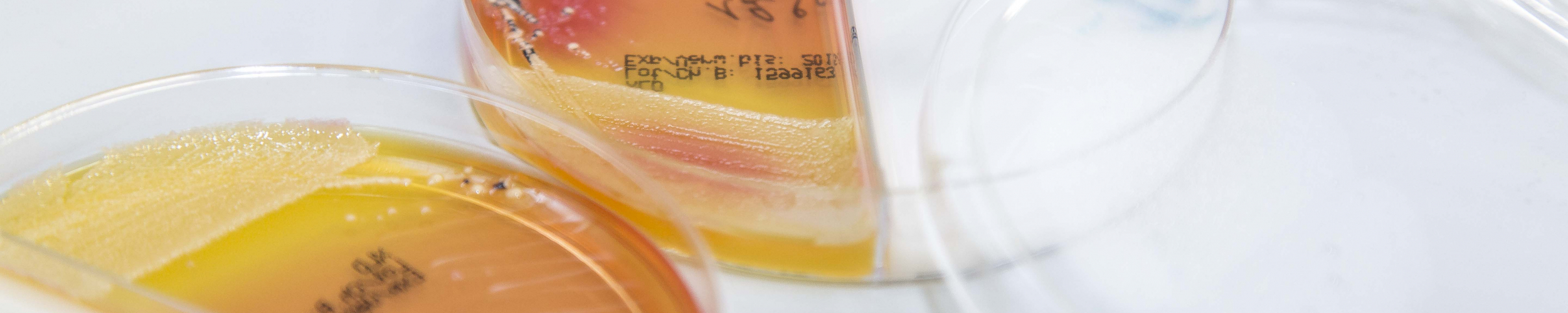 BACTERIOLOGICAL RESEARCH